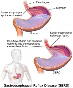 Heartburn, Acid Reflux and Gastro-Oesophageal Reflux Disease  (GERD)