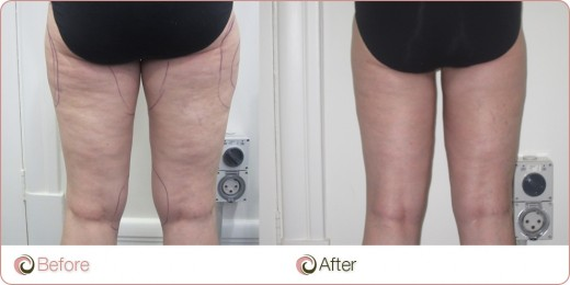 Before & after VaserSmooth cellulite treatment