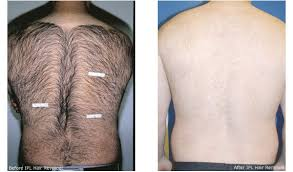 Back hair is a common obstacle for men.