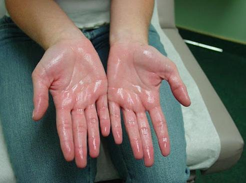 Sweaty palm syndrome
