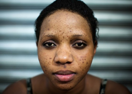 A young lady suffering from acne, as a result of skin bleaching.