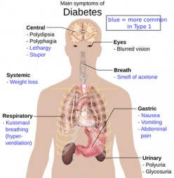 Diabetes: Risks if Left Untreated
