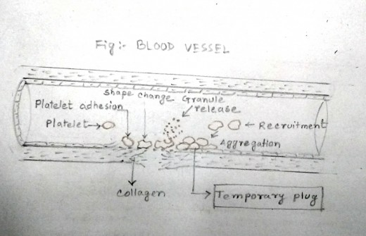 Aggregation of platelets results in formation of a temporary plug so that blood leakage stops. But it is not that strong to stop the bleeding permanently.