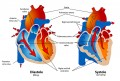 Causes of Skipped Heart Beats