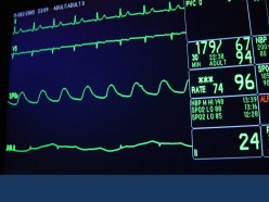 Heart Problem is not Something that you Should Deal with Anyhow, How to Identify the Best Heart Hospital?