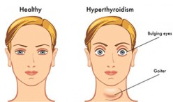 What You Should Know About Hyperthyroid Condition.