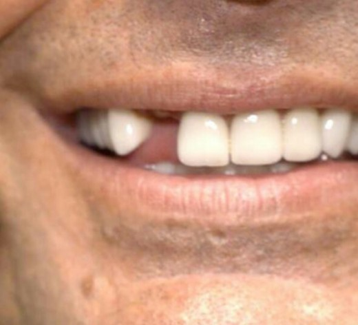 Jeff Hardy's missing tooth. Image: WWE