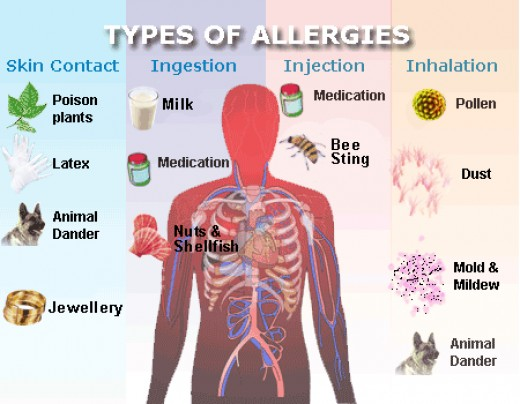 Types of Allergies people may have in there lives.