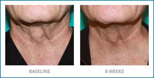 Sente's Neck Firming Cream results after using this product for 8 weeks