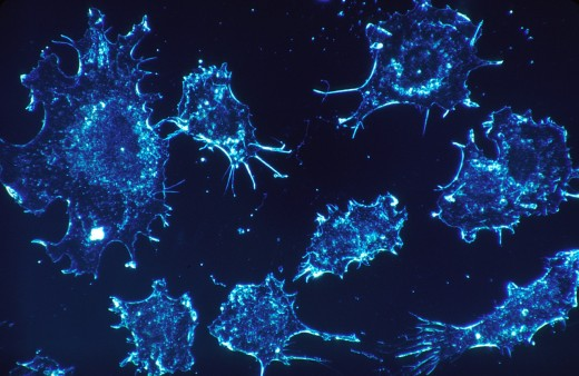 Cancer cells are cells trying to grow where they don't belong.  Stem cells are cells that try to become the cells they are replacing.