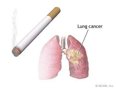Higher risk of developing Lung Cancer