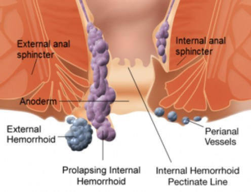 What to Expect From Hemorrhoid Removal Surgery