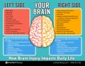 Our Brains Have 2 Hemispheres, a Left Side and a Right Side. Which Side is Your Dominant Side?