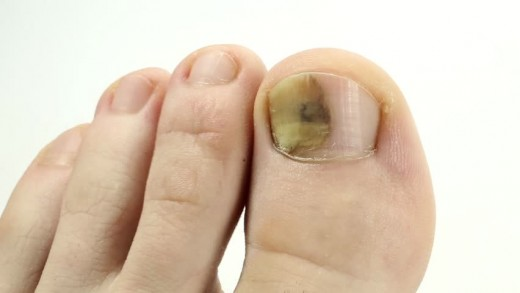 Not My Actual Foot But This Picture Shows Exactly What My Toenail Fungus Looked Like