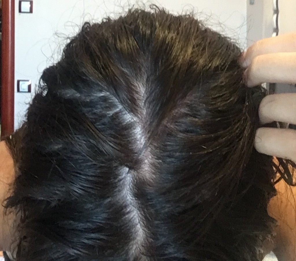 Low Ferritin Hair Loss Uphairstyle