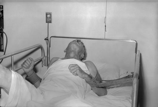 Rabies Patient