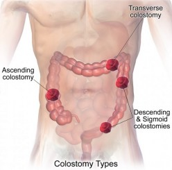 The Different Types of Colostomy Procedures