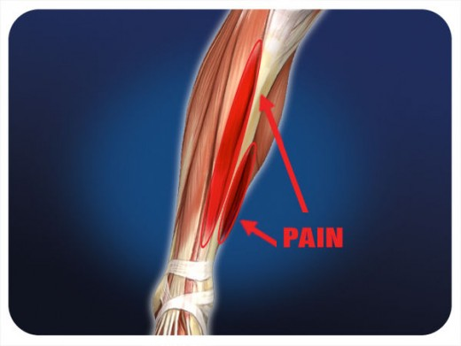 Shinsplints an injury you can get from running
