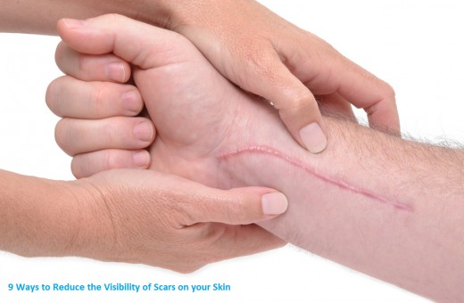 How to reduce the visibility of scars on your skin.