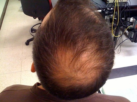 Hair Loss in a Man