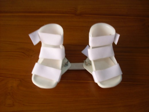 Ankle Foot Orthosis for CTEV child.