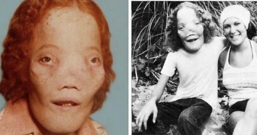 """Two images of the real-life Rocky Dennis, later played by Eric Stoltz in the film """"Mask."""""""