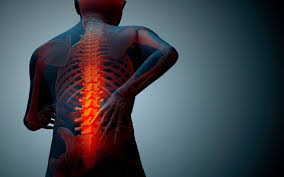 Lower back pain is the leading cause of chronic pain in the adult population.  Patients with lower back pain often end up addicted to opioid medications, as there are few effective alternatives.  In many cases, a topical pain cream can be helpful.