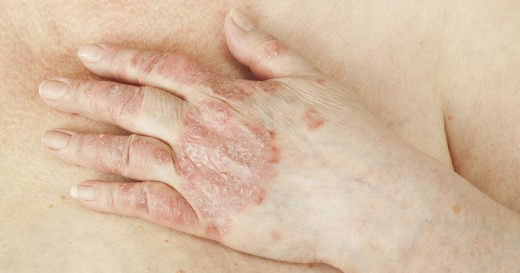 Just as psoriasis inflames the skin tissue, PsA inflames the tissue in and around the joints.
