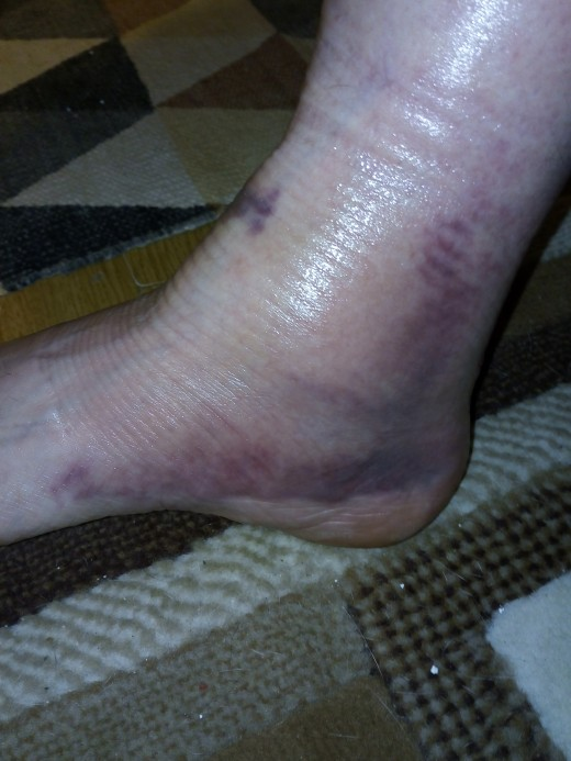 My badly sprained ankle
