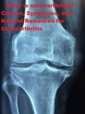 How Do You Know if You Have Osteoarthritis? Causes, Symptoms, and Natural Remedies for Osteoarthritis