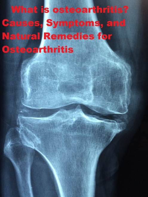 What is osteoarthritis? Causes, Symptoms, and Natural Remedies for Osteoarthritis