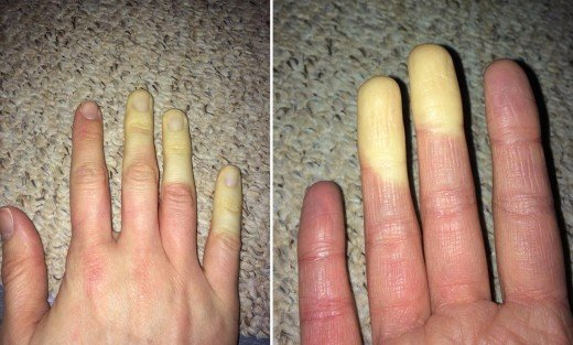 Patient with Primary Raynaud's. Located in England.