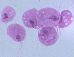 Trichomoniasis Symptoms and Cure