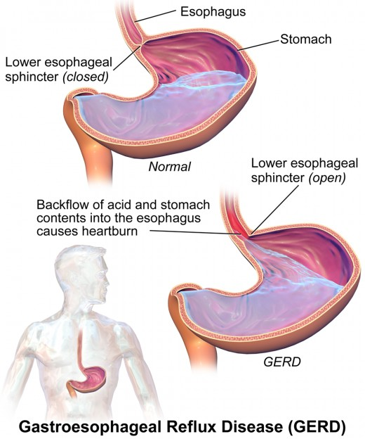 Acid reflux can cause you to vomit foam that is mostly made of stomach acid and mucus.