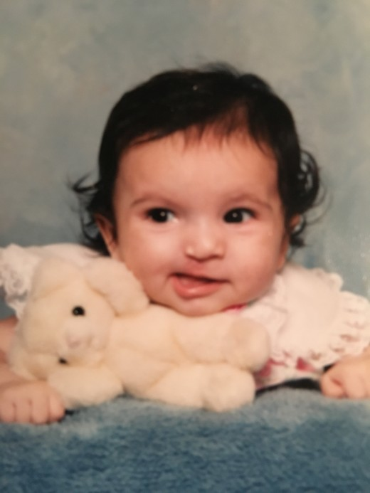 Me as a baby, shortly after my cleft lip surgery. I was about 1 in this picture.