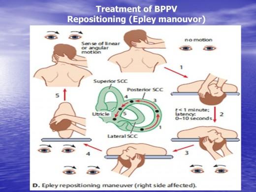 BPPV Details