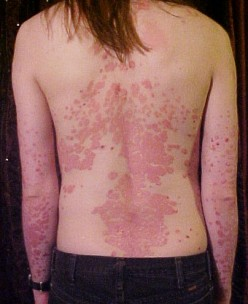Psoriasis? Try Humid Air