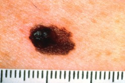 Moles And Skin Cancer (Melanoma) Do You Know The Difference?
