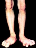 HGH and enlargement of joints and body organs.