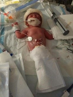 What to Expect in the Nicu as a Parent of a Premature Baby