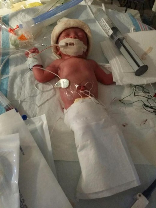 Newborn NICU baby named Bryce. He is a happy, healthy 4 year old now.