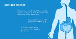 Crohn's Disease and Your Diet