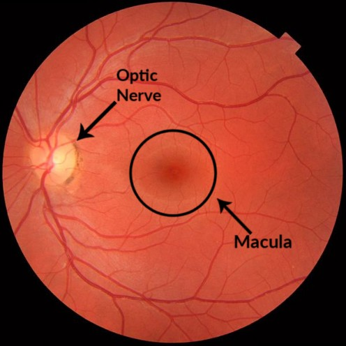 The normal retina showing the location of the optic nerve and the macula.