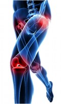 My Path to Osteoarthritis