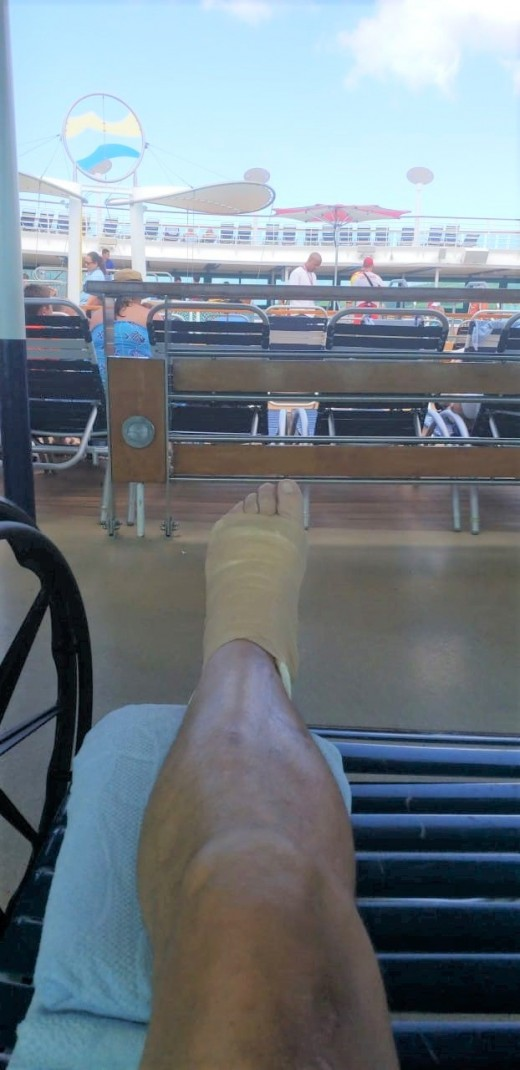 Poolside on the Jewel of the seas.. with my broken foot. Surgery is waiting for me when I get home. — at St. Croix.