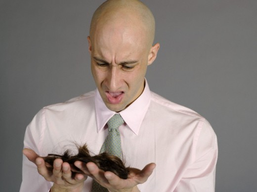 Don't wait until all your hair falls out. Look into hair loss treatments today.