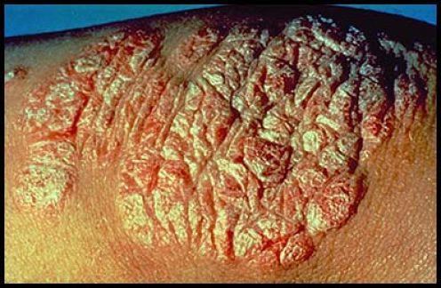 Advanced Plaque Psoriasis