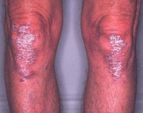 Plaque Psoriasis Knees