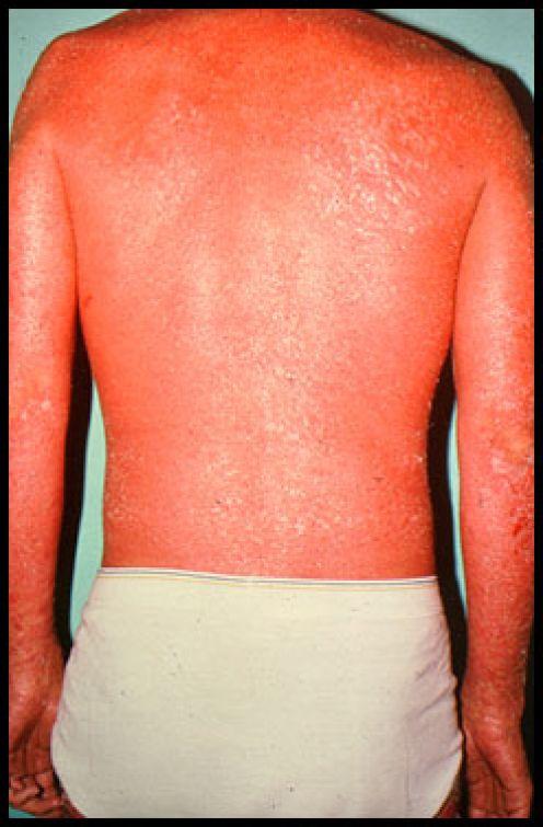 Erythrodermic Psorisis