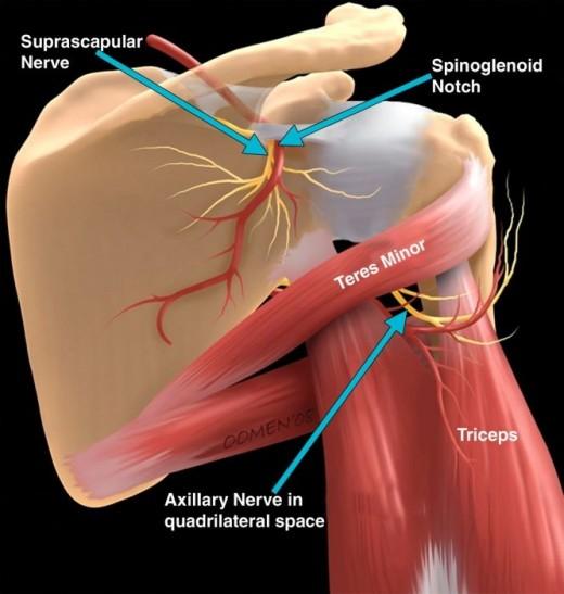 Trapped nerves in shoulder